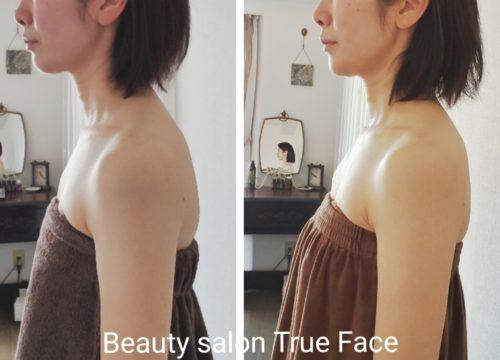 水素美容ラヴィーサ®️によるフェイシャルエステ。年齢と共に扁平になるお顔に立体感を取り戻し、潤いハリのある美肌を作ります