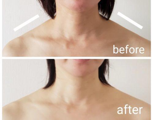 水素美容ラヴィーサ®️によるフェイシャルエステ。たるみ、浮腫み改善、小顔、潤いハリのある美肌に